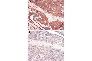 Image no. 1 for anti-Solute Carrier Family 31 (Copper Transporters), Member 1 (SLC31A1) antibody (ABIN5588175)