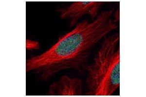 Image no. 2 for anti-Zinc Finger and SCAN Domain Containing 21 (Zscan21) (Internal Region) antibody (ABIN2855992)