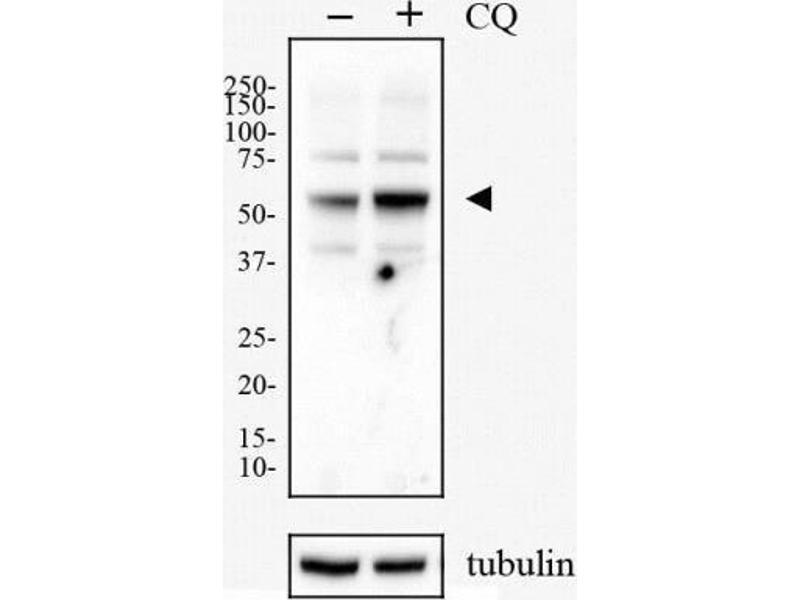 Western Blotting (WB) image for anti-SQSTM1 antibody (Sequestosome 1) (Internal Region) (ABIN449244)