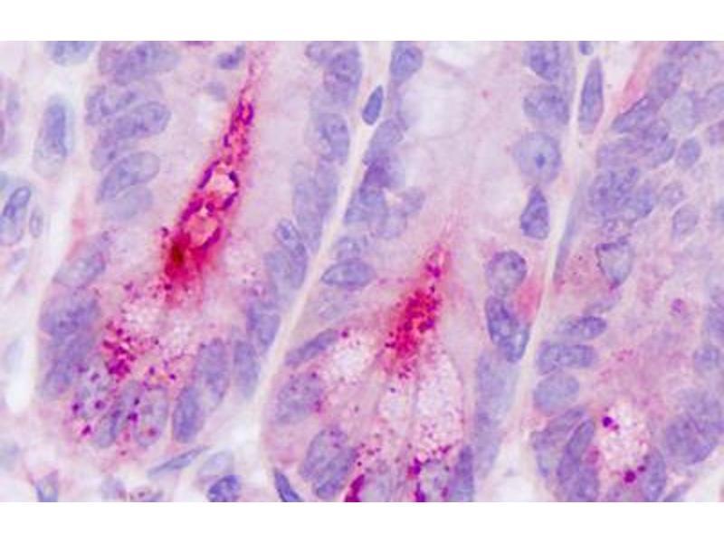 Immunohistochemistry (IHC) image for anti-Dipeptidyl-Peptidase 4 (DPP4) (Internal Region) antibody (ABIN213568)
