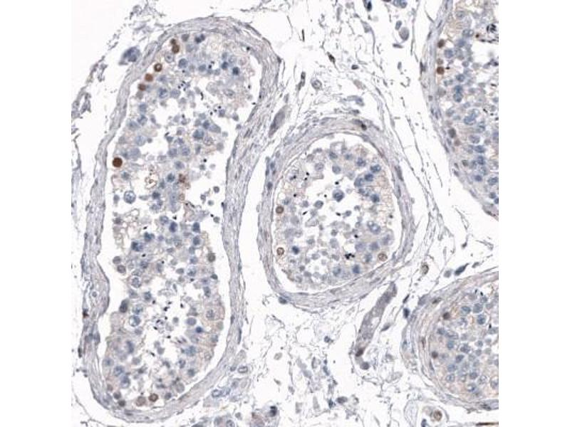 Immunofluorescence (Paraffin-embedded Sections) (IF (p)) image for anti-Sal-Like 4 (Drosophila) (SALL4) antibody (ABIN4351917)