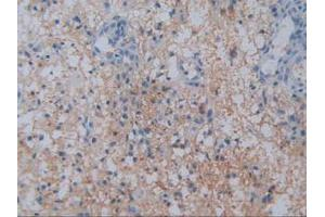 Immunohistochemistry (Paraffin-embedded Sections) (IHC (p)) image for anti-Dipeptidyl-Peptidase 4 (DPP4) (AA 484-728) antibody (ABIN2926234)