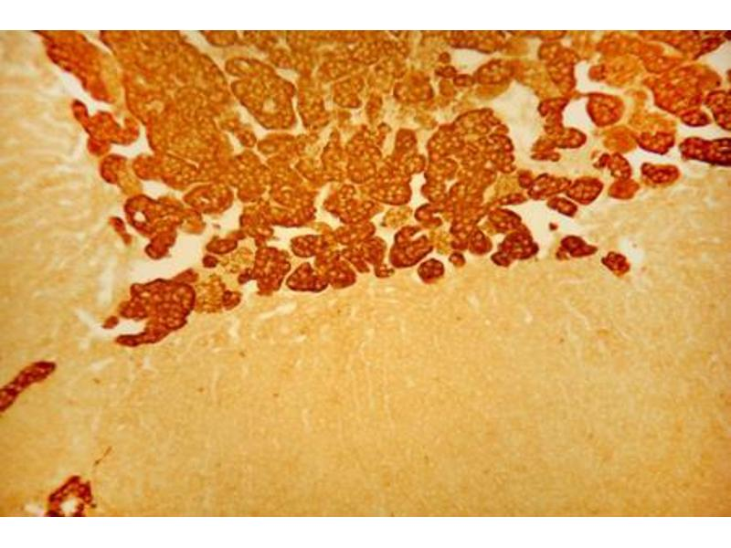 Immunocytochemistry (ICC) image for anti-Chromogranin A (CHGA) antibody (ABIN617895)
