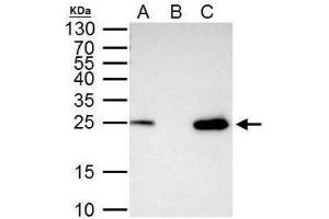 Immunoprecipitation (IP) image for anti-Transcription Factor A, Mitochondrial (TFAM) (Center) antibody (ABIN4336024)