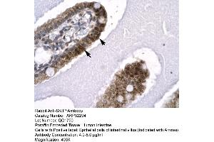 Image no. 2 for anti-SNW Domain Containing 1 (SNW1) (N-Term) antibody (ABIN2779548)