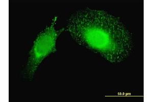 Immunofluorescence (IF) image for anti-Programmed Cell Death 6 Interacting Protein (PDCD6IP) (AA 1-110), (partial) antibody (ABIN564316)