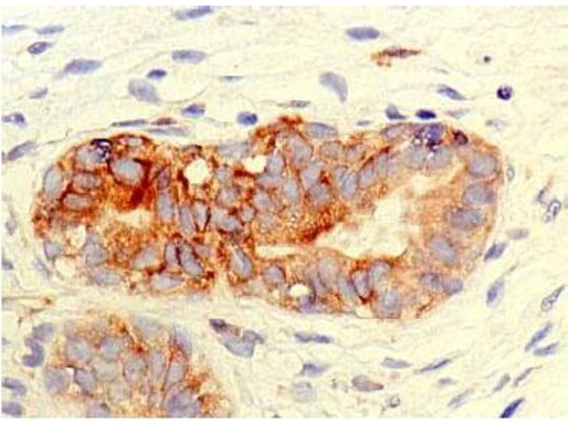 Immunohistochemistry (IHC) image for anti-Transporter 2, ATP-Binding Cassette, Sub-Family B (MDR/TAP) (TAP2) (AA 434-703) antibody (ABIN2853577)