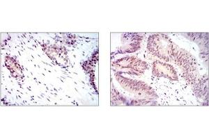 Image no. 2 for anti-Yes-Associated Protein 1 (YAP1) antibody (ABIN1109527)