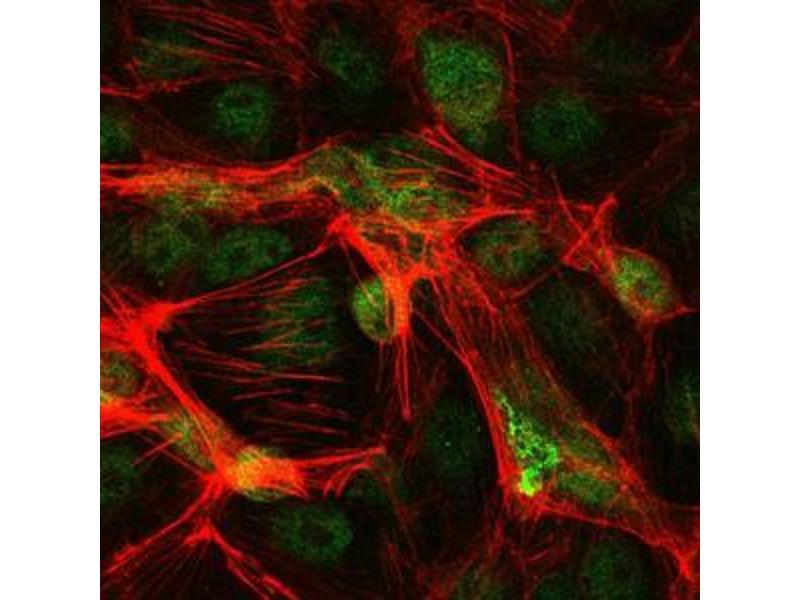 Immunocytochemistry (ICC) image for anti-Jun Proto-Oncogene (JUN) antibody (ABIN968994)