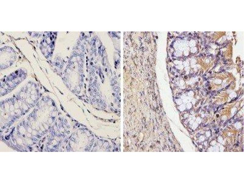 Immunohistochemistry (Paraffin-embedded Sections) (IHC (p)) image for anti-Galectin 3 antibody (Lectin, Galactoside-Binding, Soluble, 3) (ABIN152697)