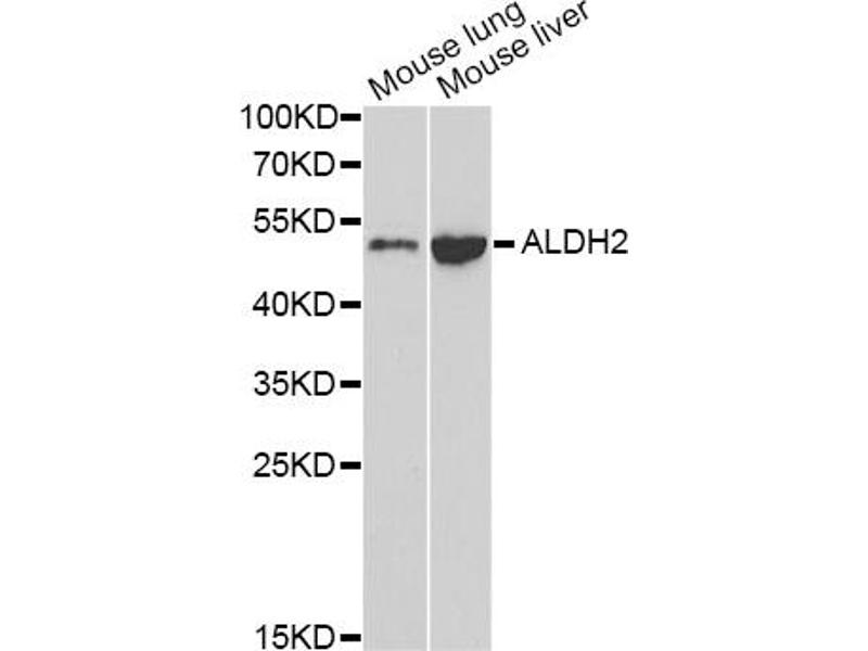 Image no. 3 for anti-Aldehyde Dehydrogenase 2 Family (Mitochondrial) (ALDH2) antibody (ABIN6567396)