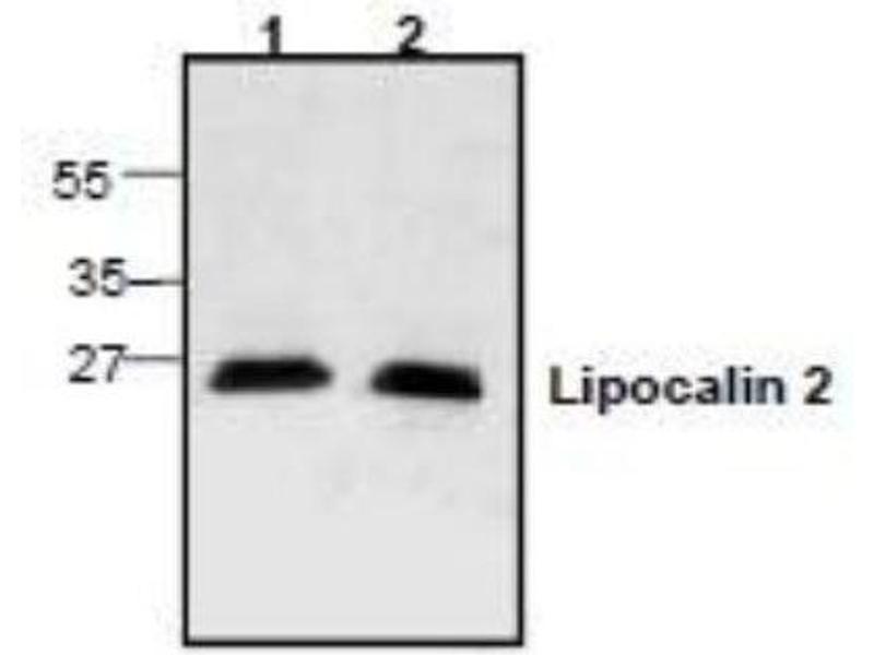 Western Blotting (WB) image for anti-Lipocalin 2 (LCN2) antibody (ABIN4331122)