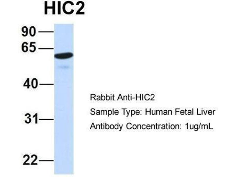 Western Blotting (WB) image for anti-HIC2 antibody (Hypermethylated in Cancer 2) (Middle Region) (ABIN486872)