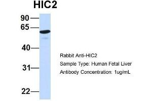 Image no. 2 for anti-Hypermethylated in Cancer 2 (HIC2) (Middle Region) antibody (ABIN2777438)
