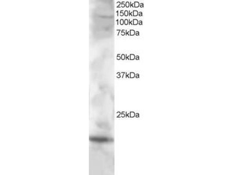 Western Blotting (WB) image for anti-Cystatin F (Leukocystatin) (CST7) (C-Term) antibody (ABIN249525)