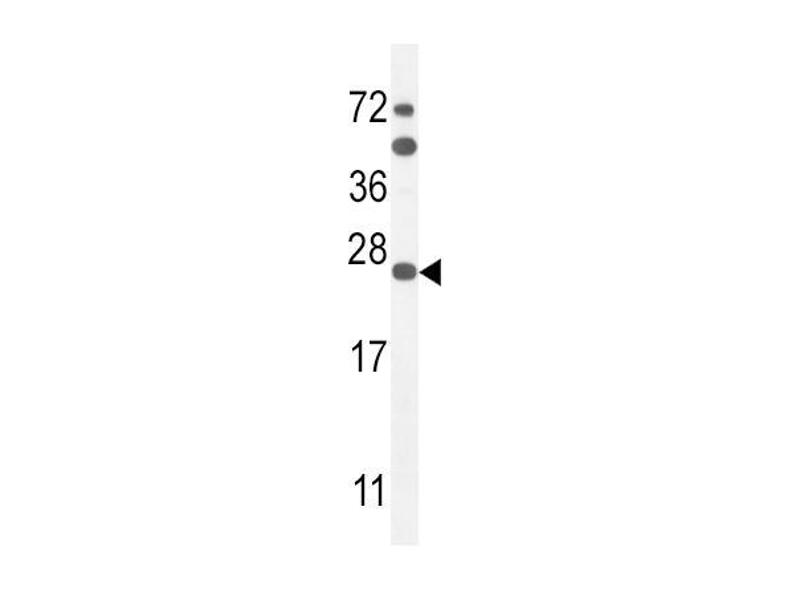 Western Blotting (WB) image for anti-Sodium Channel, Voltage-Gated, Type I, beta (SCN1B) (AA 63-90), (N-Term) antibody (ABIN654602)
