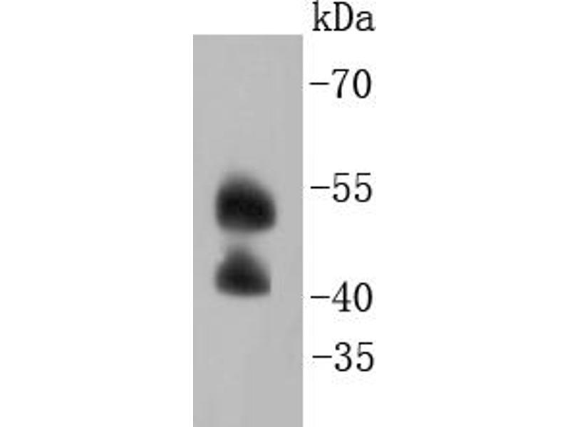 Western Blotting (WB) image for anti-Mitogen-Activated Protein Kinase 9 (MAPK9) antibody (ABIN5557375)