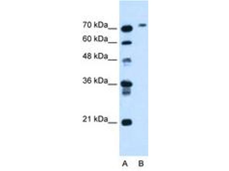 image for anti-Butyrylcholinesterase (BCHE) (AA 151-200) antibody (ABIN205033)