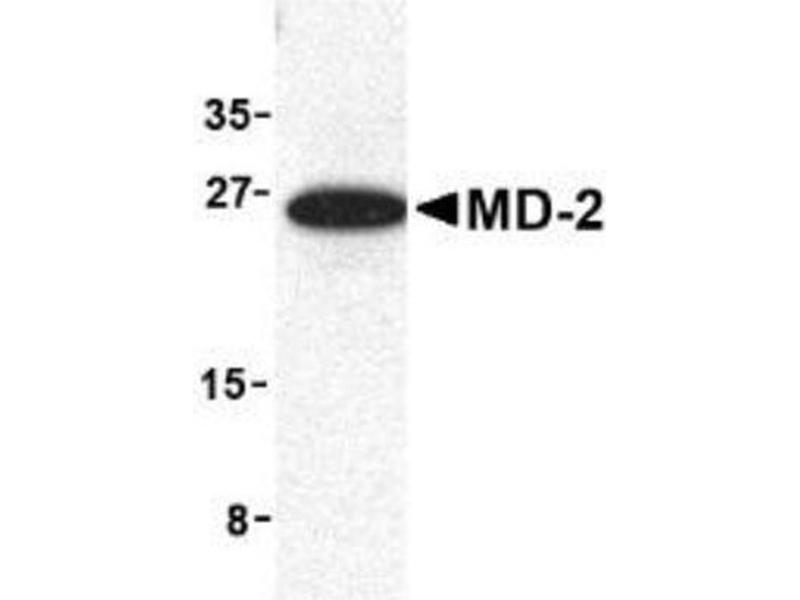 Western Blotting (WB) image for anti-Lymphocyte Antigen 96 (LY96) antibody (ABIN4333276)
