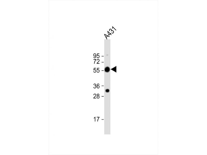 Western Blotting (WB) image for anti-Tubulin, alpha 1c (TUBA1C) (C-Term), (AA 414-441) antibody (ABIN5533007)