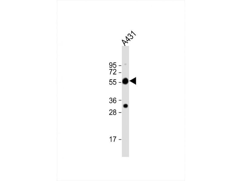 Western Blotting (WB) image for anti-Tubulin, alpha 1c (TUBA1C) (AA 414-441), (C-Term) antibody (ABIN5533007)