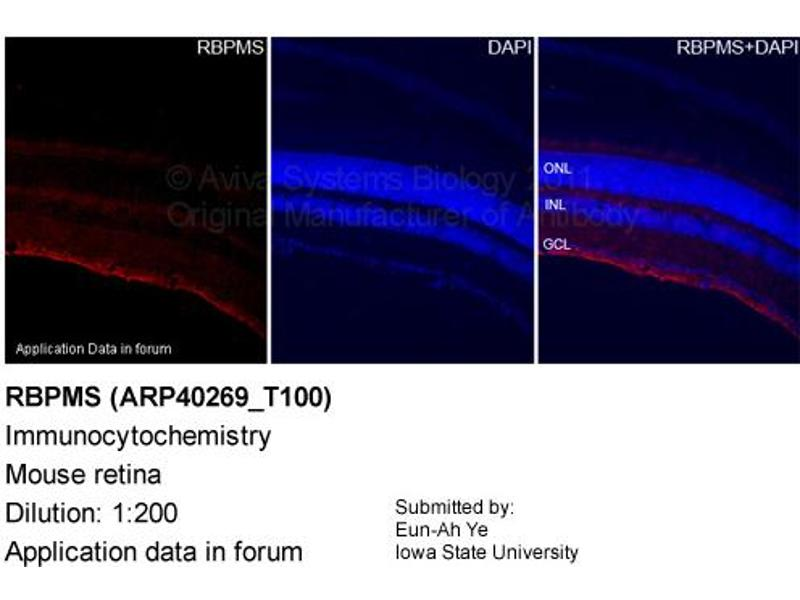 Image no. 2 for anti-RNA Binding Protein with Multiple Splicing (RBPMS) (N-Term) antibody (ABIN310013)