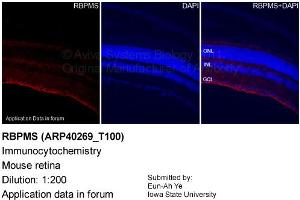 anti-RNA Binding Protein with Multiple Splicing (RBPMS) (N-Term) antibody (2)