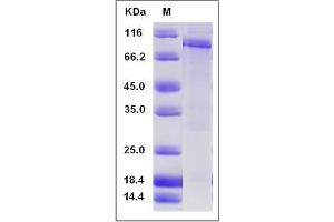 Image no. 1 for phosphodiesterase 3A, cGMP-Inhibited (PDE3A) (AA 669-1141) protein (GST tag,His tag) (ABIN2004880)