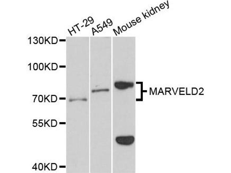Western Blotting (WB) image for anti-Tricellulin (MARVELD2) antibody (ABIN4904311)