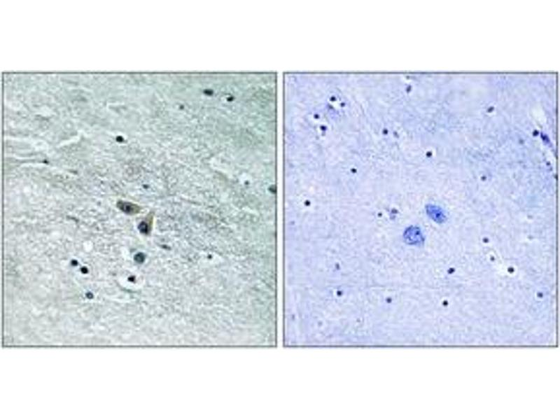 Immunohistochemistry (IHC) image for anti-Mitogen-Activated Protein Kinase Kinase Kinase 8 (MAP3K8) (AA 366-415) antibody (ABIN1533088)