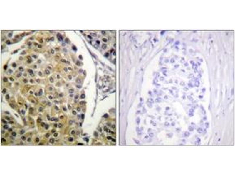 Immunohistochemistry (IHC) image for anti-PKC delta antibody (Protein Kinase C, delta) (pTyr313) (ABIN1531464)