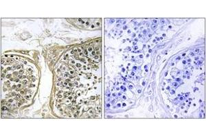 Image no. 1 for anti-Cytochrome P450, Family 2, Subfamily C, Polypeptide 8 (CYP2C8) (AA 241-290) antibody (ABIN1534384)