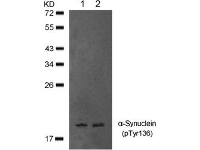 image for anti-SNCA antibody (Synuclein, alpha) (pTyr136) (ABIN401576)