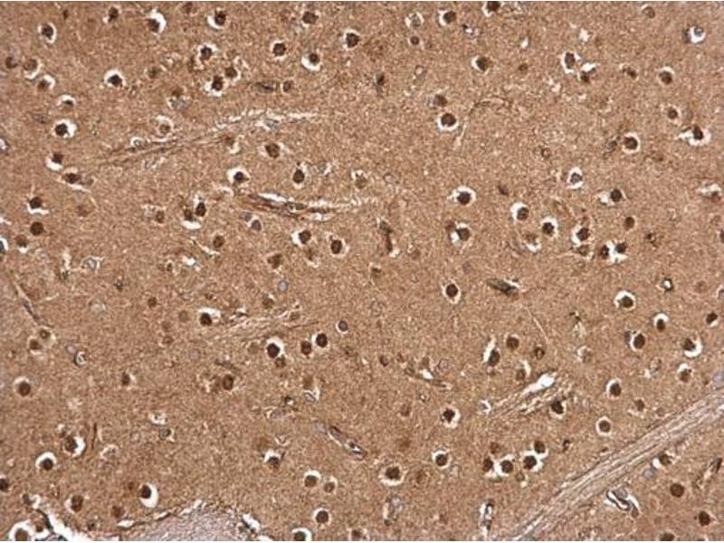 Immunohistochemistry (IHC) image for anti-RPS6KA3 antibody (Ribosomal Protein S6 Kinase, 90kDa, Polypeptide 3) (Center) (ABIN2856119)