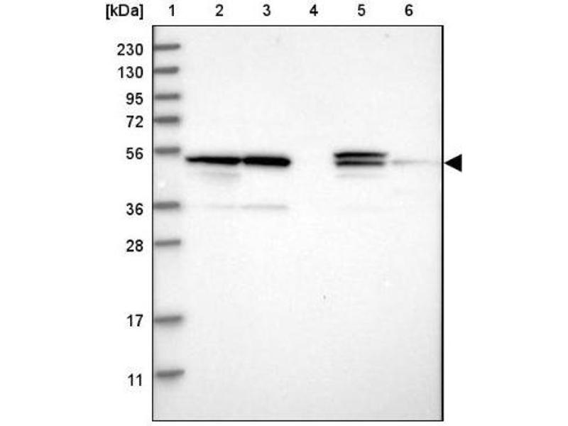 Western Blotting (WB) image for anti-Proteasome (Prosome, Macropain) 26S Subunit, Non-ATPase, 12 (PSMD12) antibody (ABIN4348295)