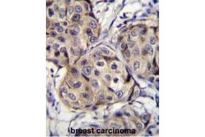 Immunohistochemistry (Paraffin-embedded Sections) (IHC (p)) image for anti-Cerebellin 2 Precursor (CBLN2) (AA 186-215), (C-Term) antibody (ABIN951480)