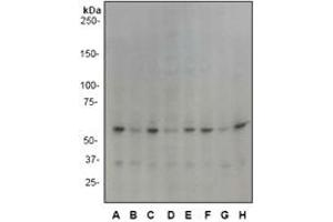 Western Blotting (WB) image for anti-PAK1 antibody (P21-Activated Kinase 1) (N-Term) (ABIN189638)