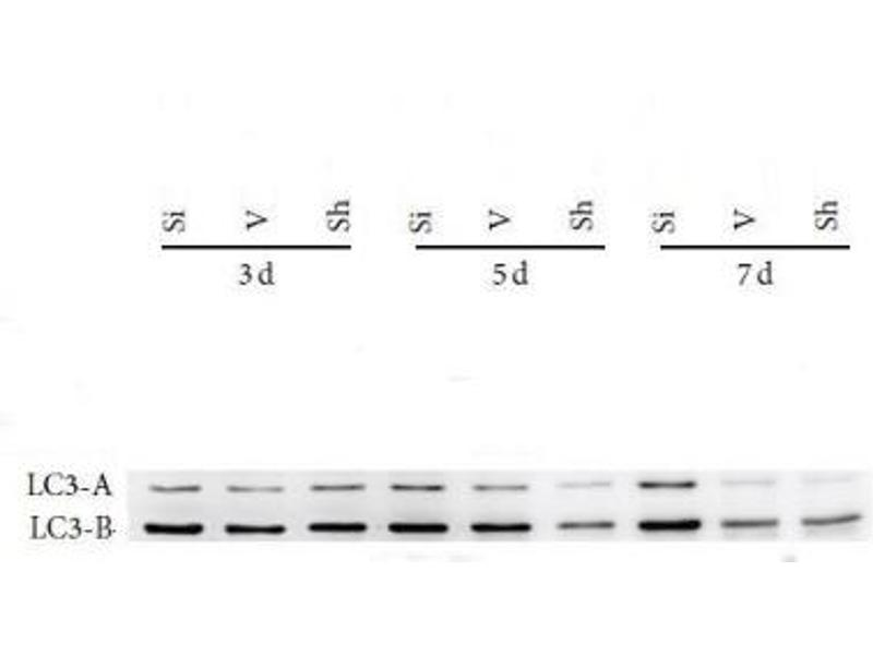 Western Blotting (WB) image for anti-Microtubule-Associated Protein 1 Light Chain 3 beta (MAP1LC3B) (AA 1-100), (N-Term) antibody (ABIN4330478)