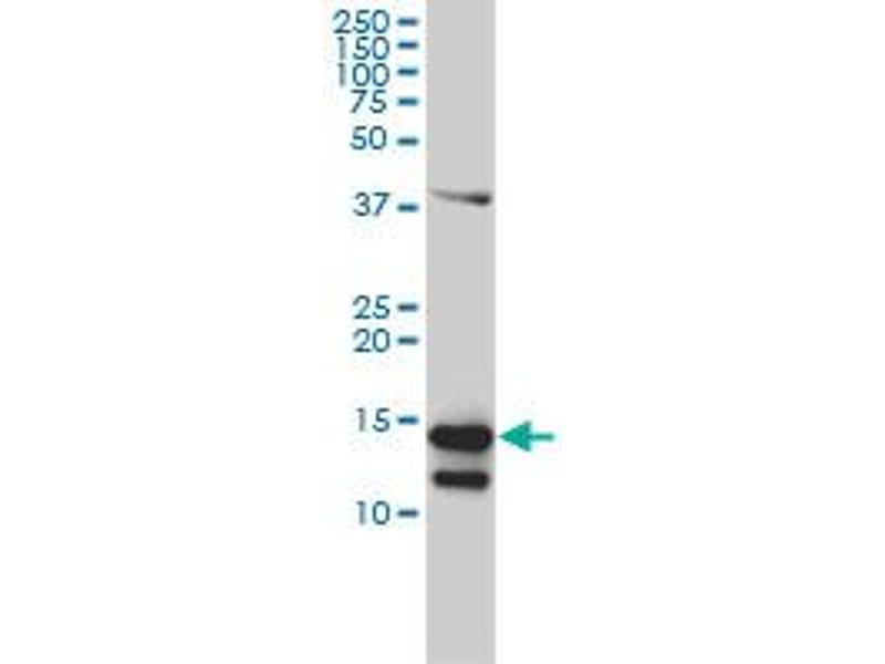 Western Blotting (WB) image for anti-CD247 Molecule (CD247) (AA 1-164), (full length) antibody (ABIN560227)
