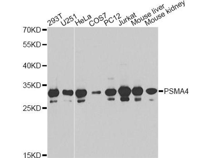 Image no. 2 for anti-Proteasome (Prosome, Macropain) Subunit, alpha Type, 4 (PSMA4) antibody (ABIN6568026)