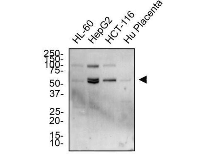 Western Blotting (WB) image for anti-Tumor Necrosis Factor Receptor Superfamily, Member 10b (TNFRSF10B) antibody (ABIN4361766)