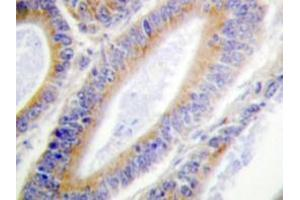 Immunohistochemistry (Paraffin-embedded Sections) (IHC (p)) image for anti-CSNK1A1 antibody (Casein Kinase 1, alpha 1) (ABIN498265)