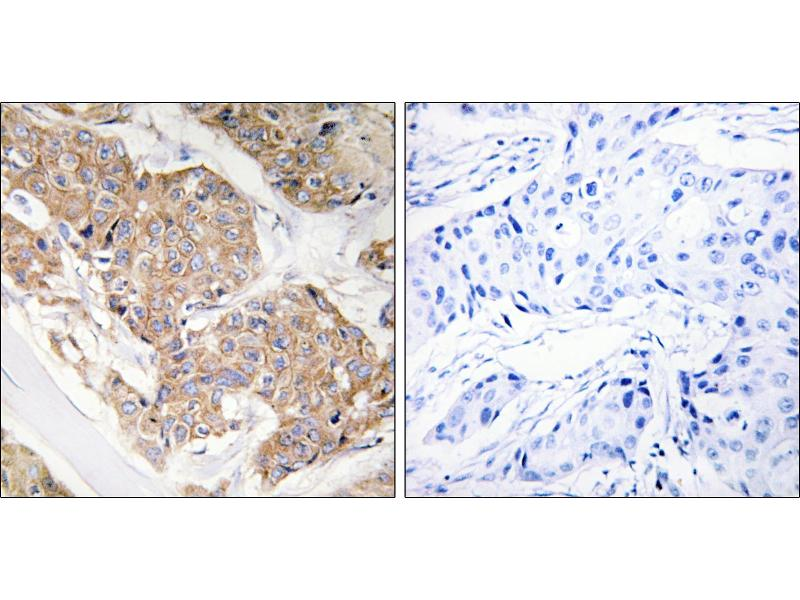 Immunohistochemistry (IHC) image for anti-IL13 Receptor alpha 1 antibody (Interleukin 13 Receptor, alpha 1) (Tyr405) (ABIN2490707)