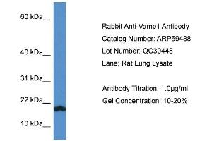 Image no. 1 for anti-Vesicle-Associated Membrane Protein 1 (Synaptobrevin 1) (VAMP1) (C-Term) antibody (ABIN2788089)