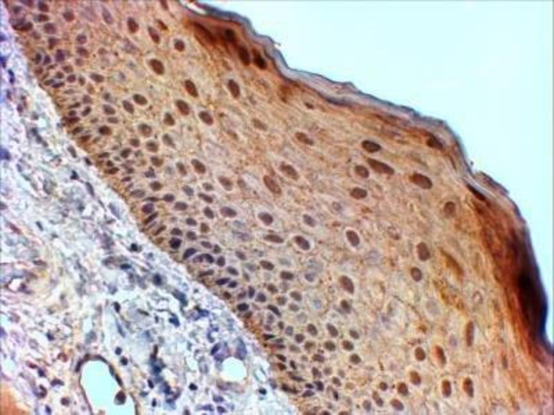 Immunohistochemistry (Paraffin-embedded Sections) (IHC (p)) image for anti-Stratifin Antikörper (SFN) (ABIN250903)
