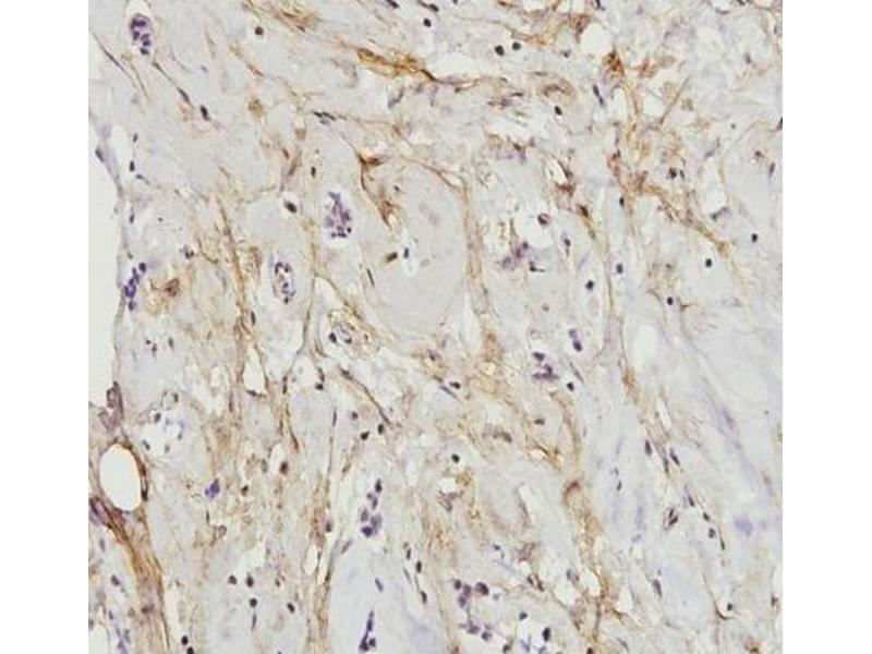 Immunohistochemistry (Paraffin-embedded Sections) (IHC (p)) image for anti-Paxillin antibody (PXN) (N-Term) (ABIN447010)