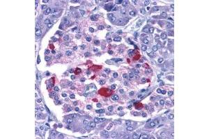 Immunohistochemistry (Formalin-fixed Paraffin-embedded Sections) (IHC (fp)) image for anti-Endonuclease G antibody (ENDOG) (ABIN2167432)