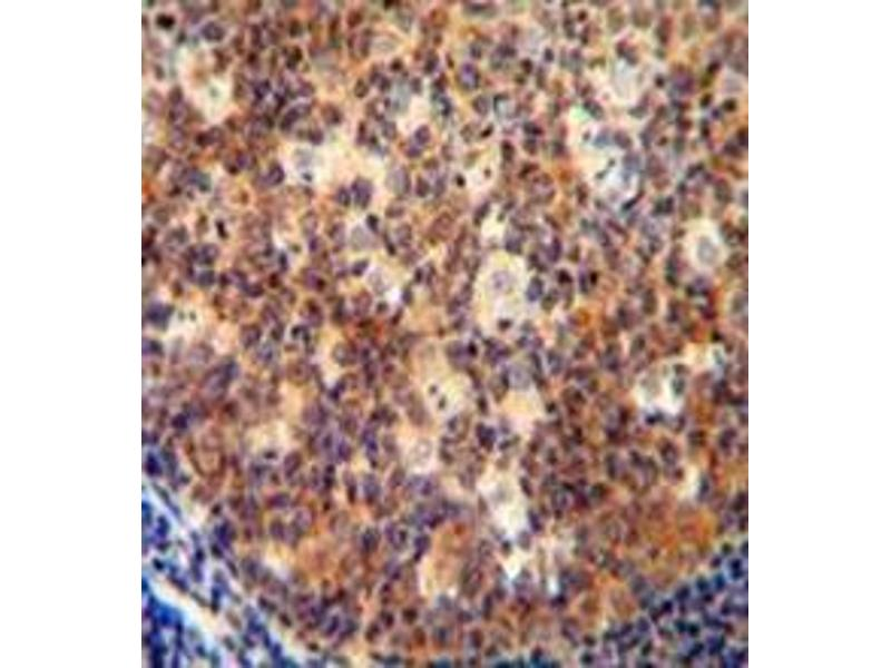 Immunohistochemistry (Paraffin-embedded Sections) (IHC (p)) image for anti-IL12B antibody (Interleukin 12b) (AA 271-298) (ABIN952920)