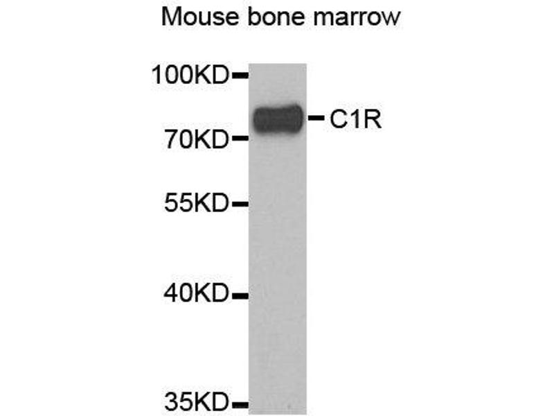 Western Blotting (WB) image for anti-Complement Component 1, R Subcomponent (C1R) antibody (ABIN2561500)