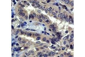 Immunohistochemistry (IHC) image for anti-ROCK1 antibody (rho-Associated, Coiled-Coil Containing Protein Kinase 1) (C-Term) (ABIN258448)